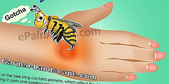 Wasp Sting Allergy: Symptoms & First Aid - Treatment